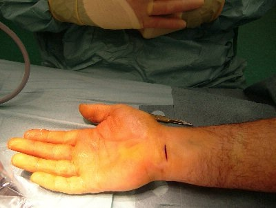 carpel tunnel syndrome essay Carpal tunnel syndrome occurs when the median nerve, which runs from the forearm into the hand, becomes pressed or squeezed at the wrist the median nerve controls.